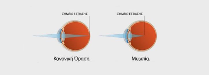 Μυωπία